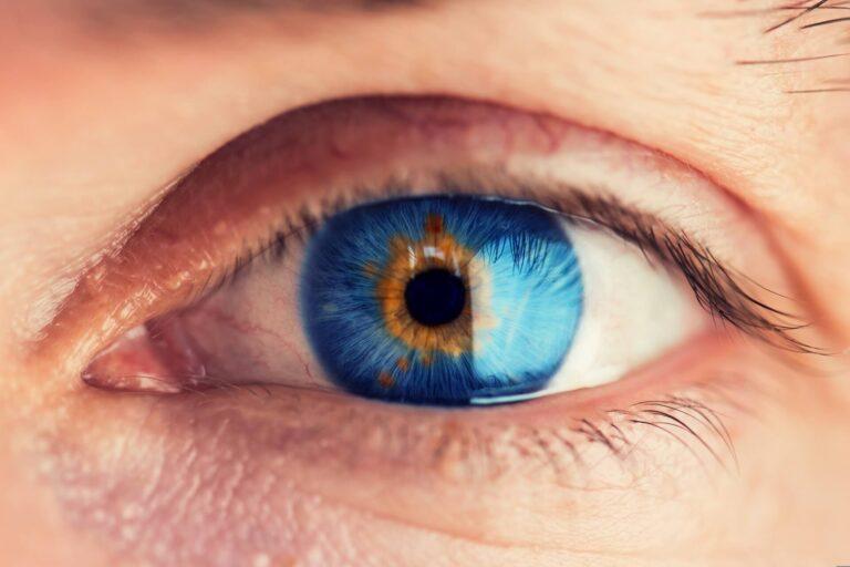 Na czym polega refrakcyjna wymiana soczewki